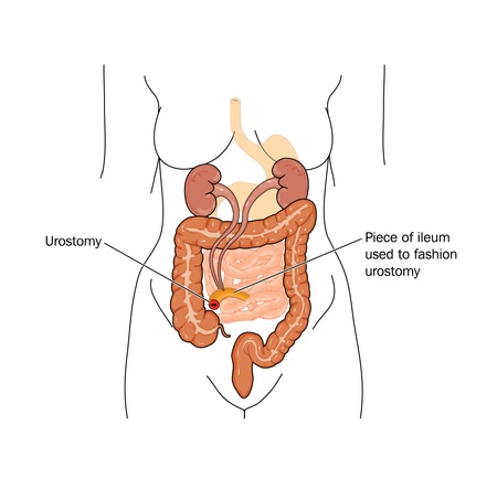 stoma: Disegno di una urostomia tipica, in cui viene utilizzato un piccolo pezzo di ileo per reindirizzare urine alla parete addominale, a seguito di intervento chirurgico alla vescica o l'ostruzione