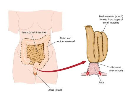 intestino: Dibujo de una bolsa �leo-rectal a partir de la eliminaci�n �leo intestinal siguiente