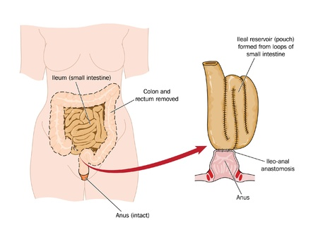 operative: Drawing of an ileo-rectal pouch made from ileum following bowel removal Illustration