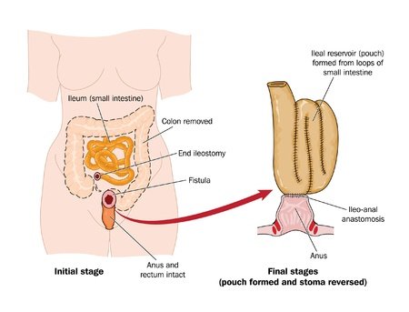 bowel cancer: Drawing to show the formation of a false rectal pouch from a section of small intestine, following removal of the colon