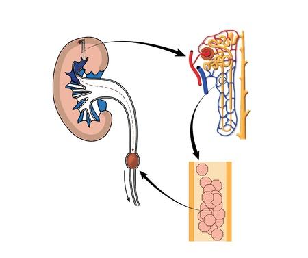 distal: De dibujo para mostrar la formación de un cálculo renal, con el detalle de la formación de cristales en la nefrona y piedra pegada en el uréter
