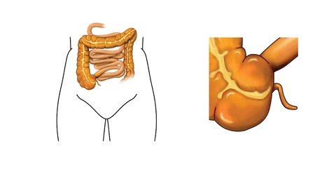 small intestine: Drawing of the small and large intestine with detail of caecum and appendix Stock Photo