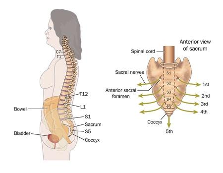 sacral: Zijaanzicht van de darm, wervelkolom en sacrale zenuwen, de zenuwen die betrokken zijn bij darmcontrole tonen