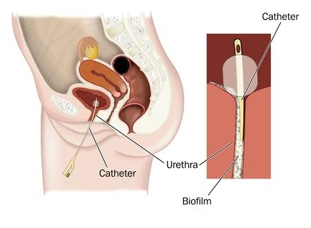 uretra: Dibujo de un catéter en la vejiga femenina, que muestra la formación de una biopelícula sobre la pared del catéter y la pared uretral Foto de archivo