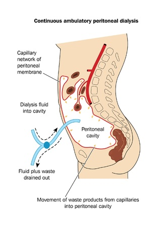 where: Drawing to show the technique of peritoneal dialysis, where dialysis fluid is placed in and then removed from the peritoneal cavity for the removal of waste materials