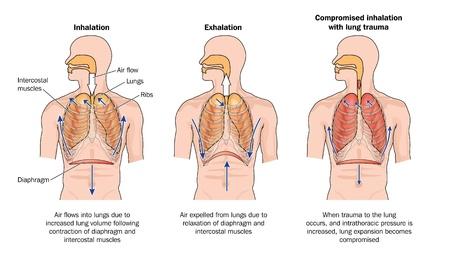 persona respirando: Dibujo para mostrar la inhalación y la exhalación la respiración normal, y los efectos del trauma pulmonar
