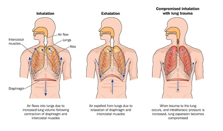 Drawing to show normal breathing inhalation and exhalation , and the effects of lung trauma