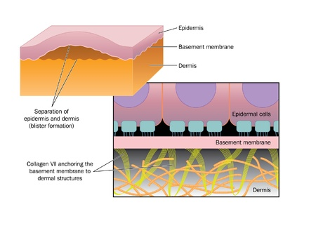 collagen: Drawing of blister formation in skin disease such as Epidermolysis bullosa, where the epidermis separates from the basement membrane and dermis