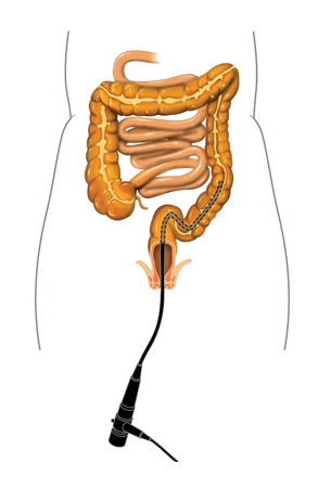 descending colon: Drawing of a colonoscopy procedure with a colonoscope placed in the large intestine Stock Photo