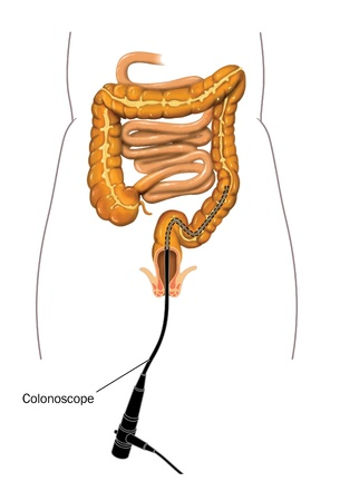 small bowel: Drawing of a colonoscopy procedure with a colonoscope placed in the large intestine Stock Photo