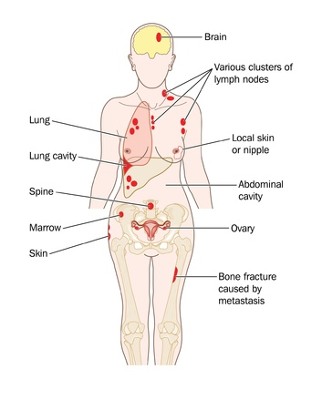 bone cancer: Sites of breast cancer metastatic spread, to the lung, brain, liver bone and other sites