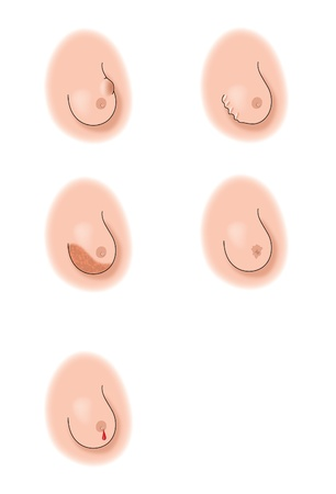 Drawing to show the different indicators that there is a cancerous tumour in the breast Stock Photo - 14104643