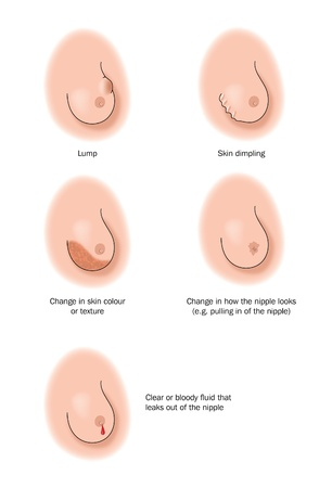 nipple breast: Drawing to show the different indicators that there is a cancerous tumour in the breast