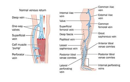 ventile: Zeichnung der Venen des Unterschenkels und der Wadenmuskelpumpe