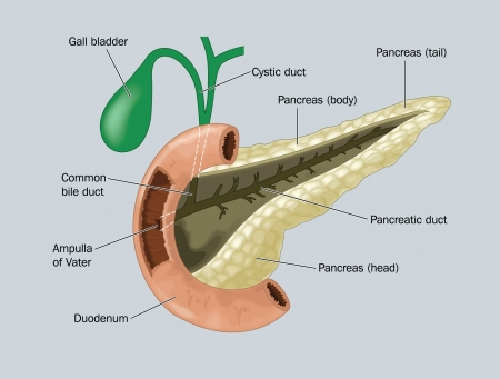 cystic duct: Drawing to show the pancreas, gall bladder and duodenum, demonstration the point where both bile and pancreatic enzymes enter the small intestine
