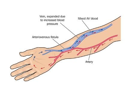 blood flow: Fistola formata tra arteria e vena del braccio per fornire il flusso di sangue maggiore per una vena per l'emodialisi Vettoriali