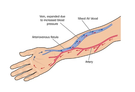 Fistula formed between artery and vein in the arm to provide greater blood flow to a vein for haemodialysis