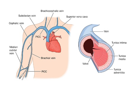 median: Drawing to show detail of a vein, and a peripherally inserted central catheter placed in the brachial vein and leading to the heart