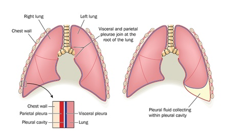 pleural fluid: Drawing to show the anatomy of normal healthy lung and pleurae, compared with a build-up of pleural fluid Illustration