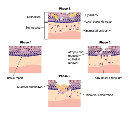 mucosa: Drawing to show phases of tissue repair, specifically oral mucosal tissue