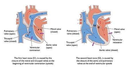 heart tone: Dibujo del coraz�n que muestra las posiciones de la v�lvula durante la s�stole