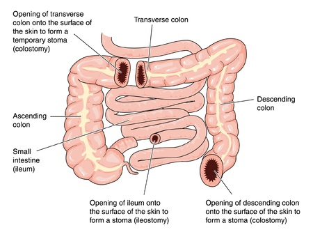 small intestine: Sites of colostomies in the transverse and descending colon, and the site of an ileostomy