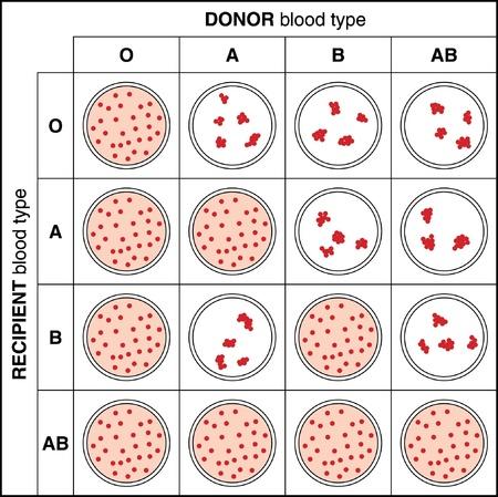 Los resultados de una cruz de sangre t�pico de coincidir con la prueba que muestra aglutinaci�n y se peguen con el tipo de sangre incompatible