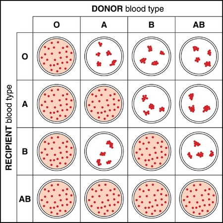 Results of a typical blood cross match test showing agglutination and clumping with incompatible blood type