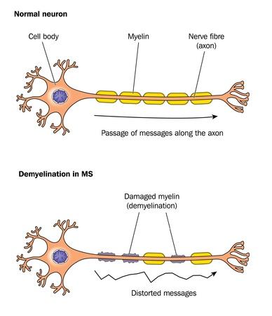 zenuwcel: Normaal neuron zenuwcel en gedemyeliniseerde neuron bij multiple sclerose