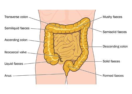 intestino grueso: Dibujo para mostrar el estado y la posición de las heces a medida que viaja a través del intestino grueso Vectores