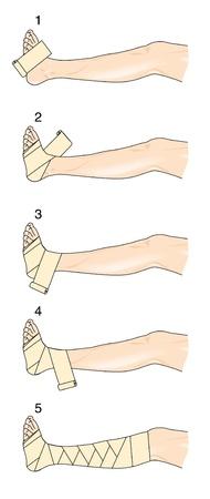 M�todo para aplicar una figura de ocho vendaje para la pierna y el pie