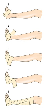 Method for applying a figure of eight bandage to the leg and foot