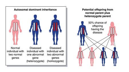 dominance: Diagrama para mostrar el potencial descendencia de un padre con dos genes normales y un padre heterocigoto con un gen anormal dominante