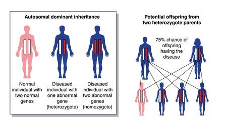 gene: Diagram om de potentiële nakomelingen zien van twee heterozygote ouders met een dominant afwijkend gen