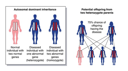 human chromosomes: Diagram to show the potential offspring from two heterozygous parents with one dominant abnormal gene