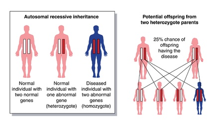 the inheritance: Diagram to show the potential offspring from two heterozygous parents with one abnormal recessive gene
