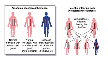 Diagrama para mostrar el potencial descendencia de dos padres heterocigóticos con un gen recesivo anormal