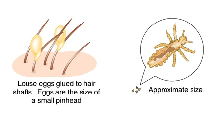 Drawing of head louse eggs glued to hair shafts and an enlarged drawing of a head louse