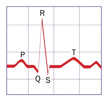 A typical ideal stylized heart QRS ecg trace, with the P, Q, R, S and T portions of the trace labeled