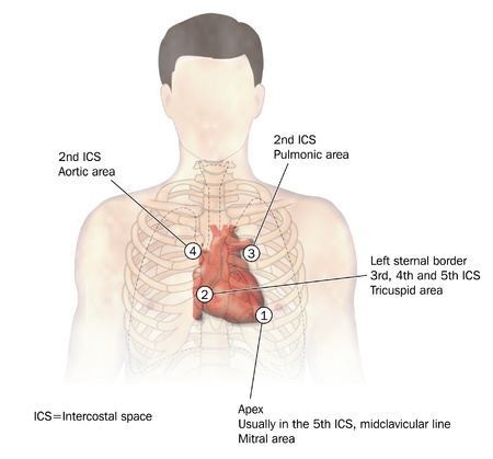 Drawing of the heart, its position in the chest and the four areas of heart sounds, or auscultation
