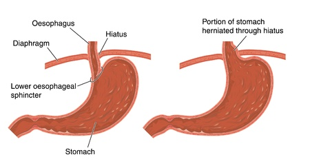 Cross section of stomach and diaphragm showing normal and herniated stomach  hiatus hernia