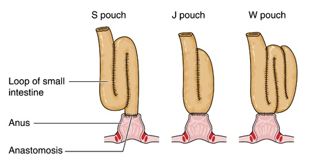 bowel cancer: Three types of rectal pouch formed from a loop of small intestine following bowel removal