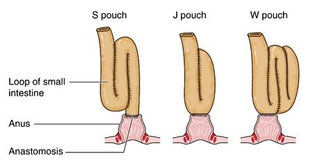small intestine: Tres tipos de saco rectal formado a partir de un asa del intestino delgado despu�s de la extracci�n del intestino Vectores
