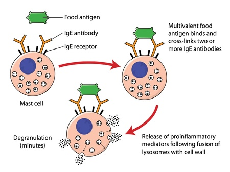 Food allergy mechanism showing the combination of a food antigen with IgE antibodies on the surface of a mast cell, resulting in degranulation of inflammatory mediators Illustration