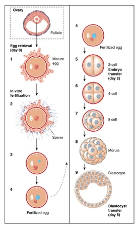 The stages of in vitro fertilization, from follicle and egg retrieval to blastocyst Vector
