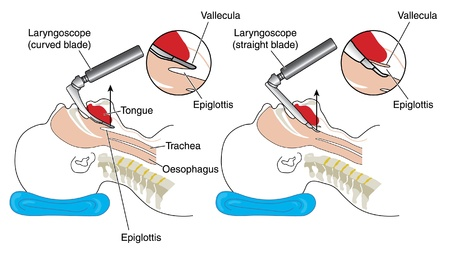 epiglottis: Inserting a curved blade and straight blade laryngoscope Illustration