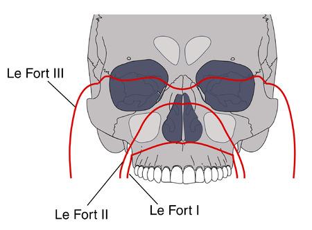 maxilla: Le Fort facial fractures