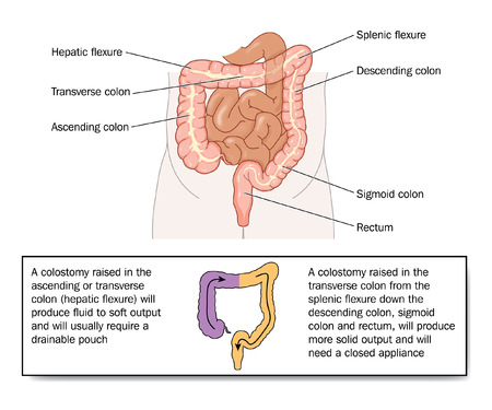 ascending colon: Stool quality resulting from various colostomies