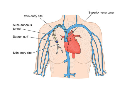Drawing of PICC catheter insertion into heart