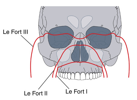 maxilla: Le Fort fractures of the skull